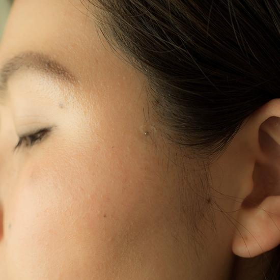 マグレイン・チタン(C)表参道・青山・原宿・渋谷エリアにある源保堂鍼灸院acupuncture clinic in tokyo