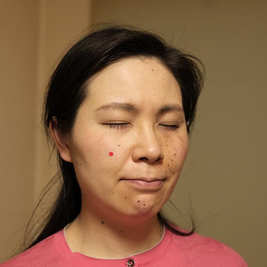 面産(C)肩こり・腰痛・寝違い・頭痛・生理痛など源保堂鍼灸院Tokyo Japan Acupuncture Clinic