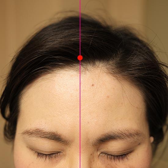 神庭(C)肩こり・腰痛・寝違い・頭痛・生理痛など源保堂鍼灸院Tokyo Japan Acupuncture Clinic